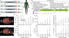An RNA vaccine drives immunity in checkpoint-inhibitor-treated melanoma
