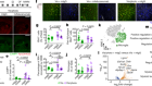 Meningeal lymphatics affect microglia responses and anti-Aβ immunotherapy