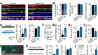 GluD1 is a signal transduction device disguised as an ionotropic receptor