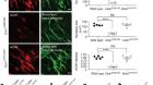 Mechanism of disease and therapeutic rescue of Dok7 congenital myasthenia