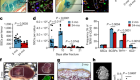 Aged skeletal stem cells generate an inflammatory degenerative niche