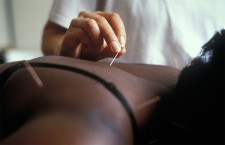 Acupuncture in cancer study reignites debate about controversial technique