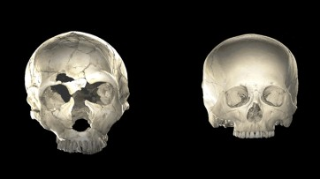 How Neanderthal DNA might have shaped some human brains