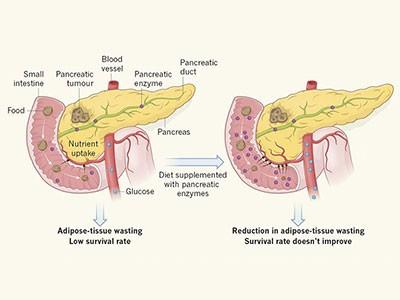 pancreatic cancer fungus