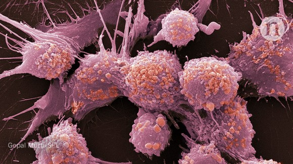 Marketing personalized cancer treatments requires careful language