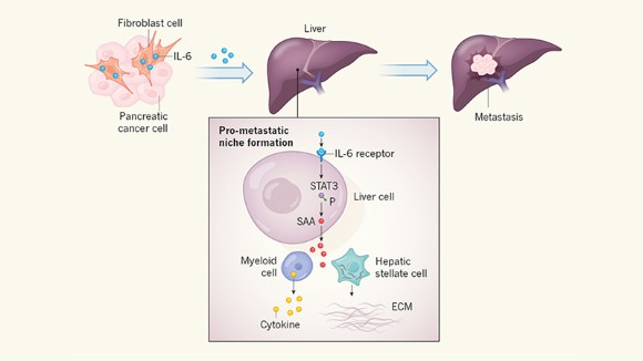 Molecular envoys pave the way for pancreatic cancer to invade the liver