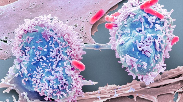 Tumours Grow Where Two Gut Bacteria Thrive Research Highlights