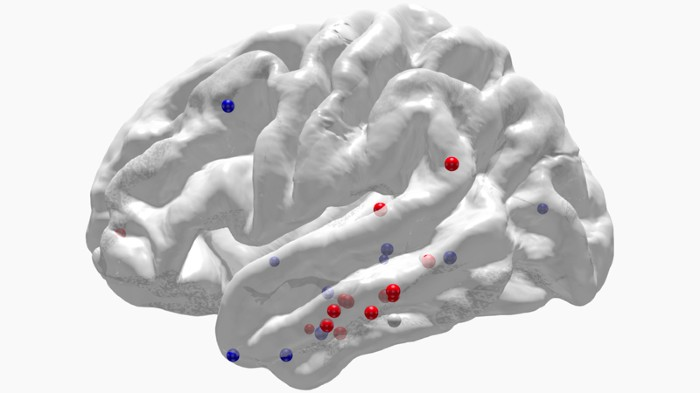 Stimulation of a brain region called the lateral temporal cortex (cluster of red pins) can improve memory.