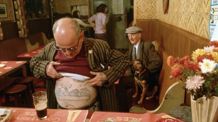 A man shows a faded tattoo on his belly