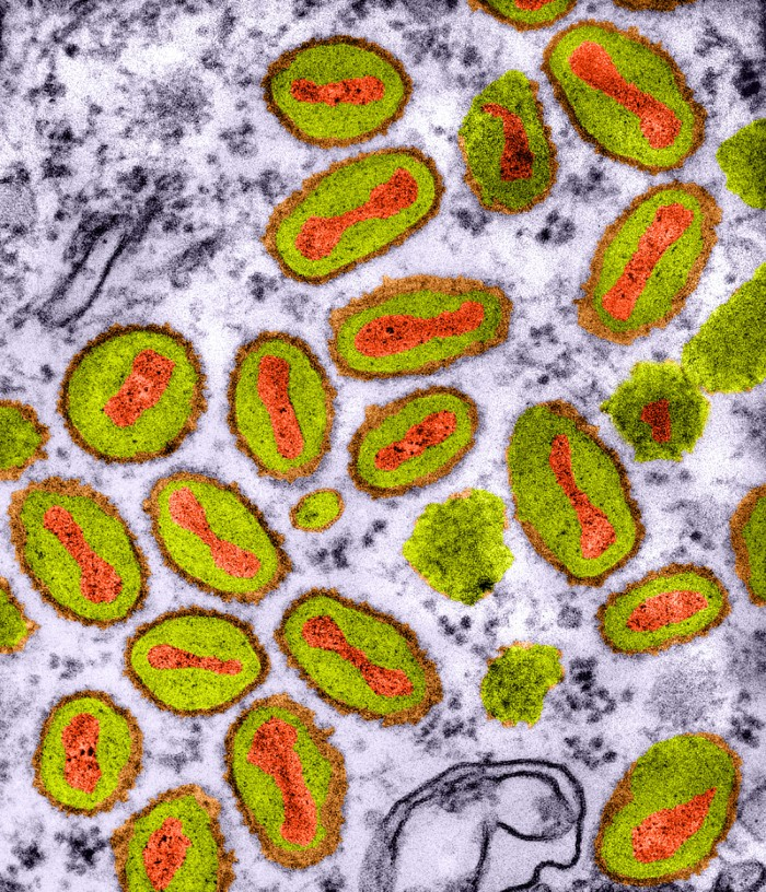 Vaccinia virus particles (red and green)