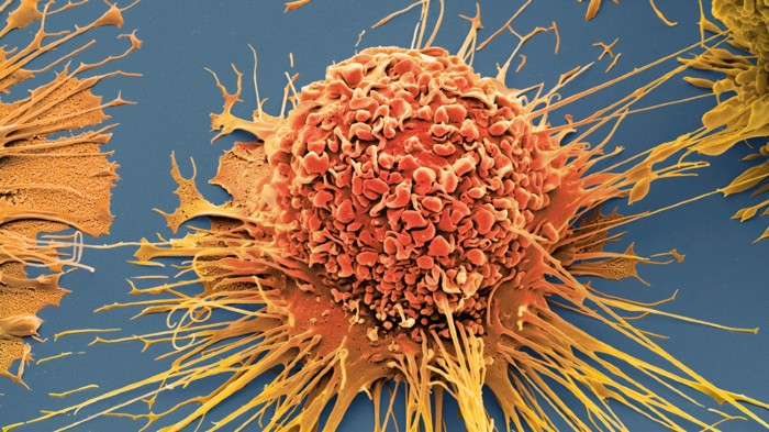 Coloured scanning electron micrograph of an activated human macrophage