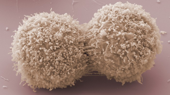 Scanning electron micrograph of dividing breast cancer cells