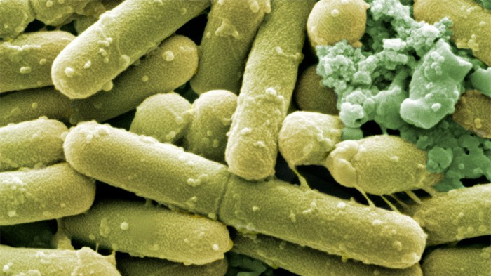 Green coloured SEM of rod shaped C.difficile bacteria