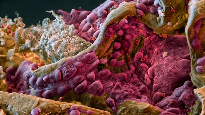 Micrograph of lung tissue affected by cancer