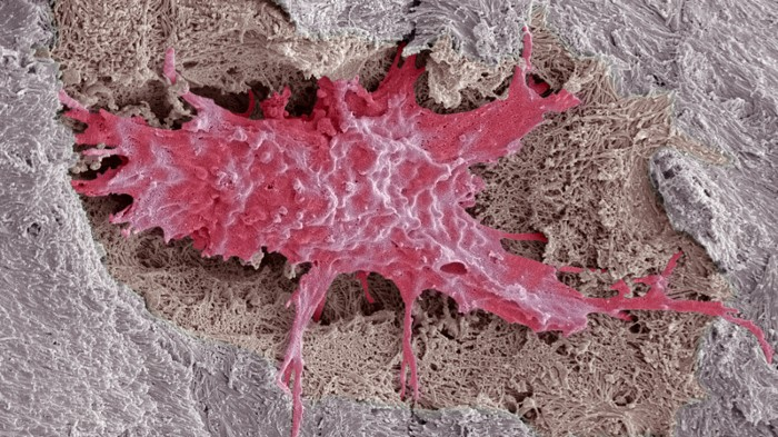 Osteocyte bone cell surrounded by bone tissue