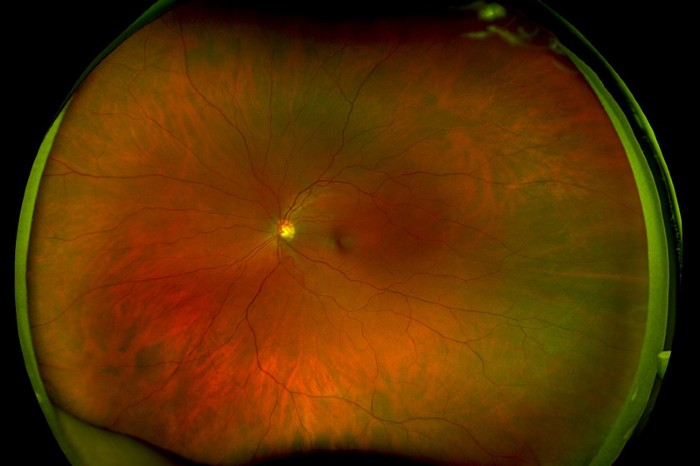 Colour scanning laser ophthalmoscope image of a healthy adult retina