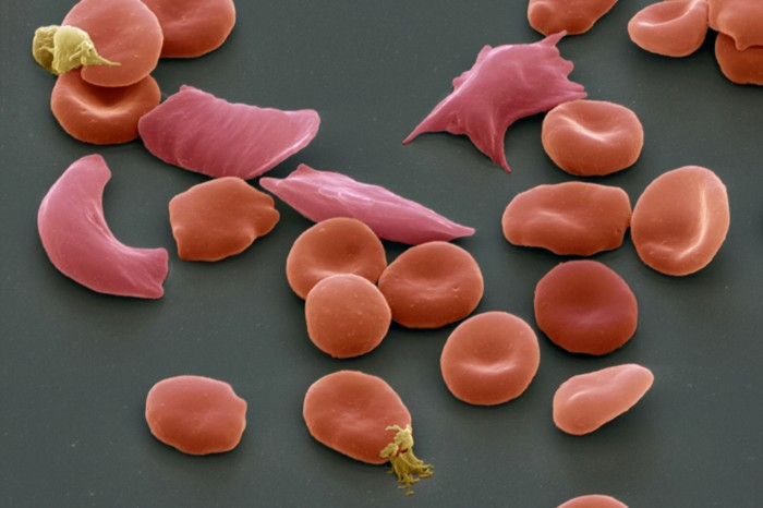 Scanning electron micrograph of normal red blood cells and distorted sickle-shaped cells in sickle cell anaemia