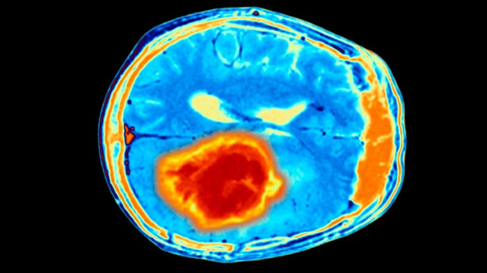 Coloured magnetic resonance imaging scan of brain with tumour.