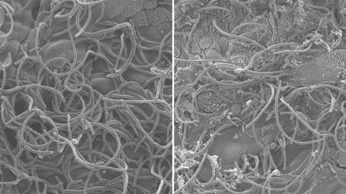 Gut-innervating neurons (LEFT) and small intestine Peyer's patches (RIGHT).