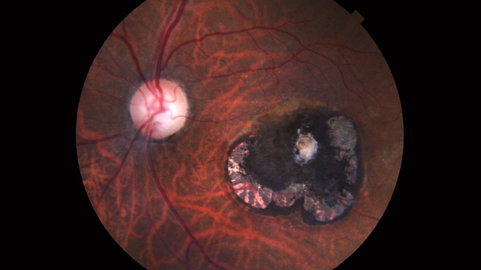 Retinal scar caused by a Toxoplasma gondii infection, or toxoplasmosis.