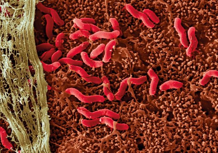 Cancerul bacterian la tomate. Interacțiunea dintre om și banda largă
