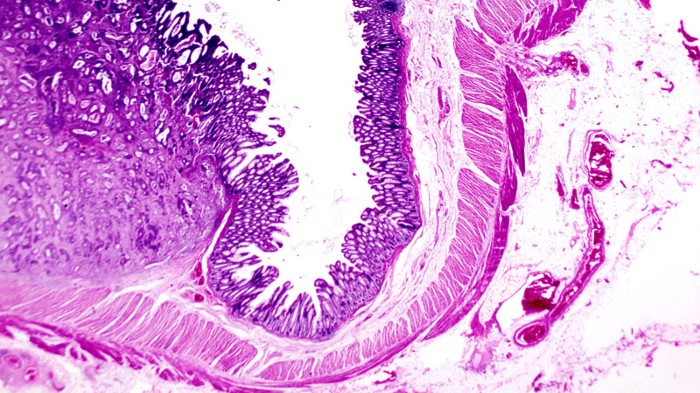 Stomach cancer, light micrograph.