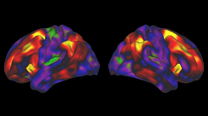 Two coloured images of a brain on a black background.