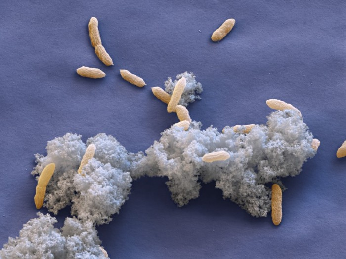 Coloured scanning electron micrograph (SEM) of Geobacter sulfurreducens bacteria amid metallic waste.