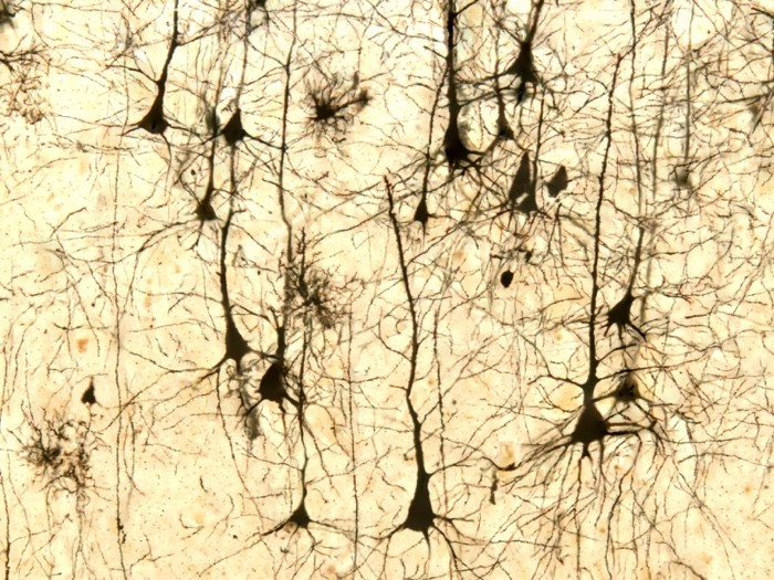 Light micrograph of pyramidal neurons of the cerebral cortex stained with Golgi silver chromate.