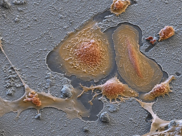 Coloured scanning electron micrograph (SEM) of cultured osteoclasts (orange).