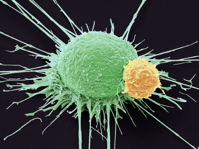 T lymphocyte and cancer cell, SEM.