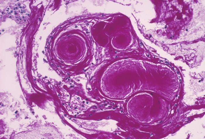 In-utero edit in mice fixes cystic fibrosis gene