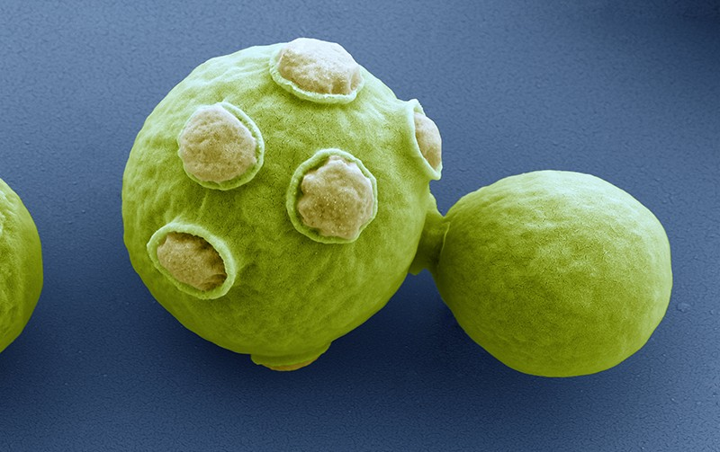 SEM of cells of brewer's yeast