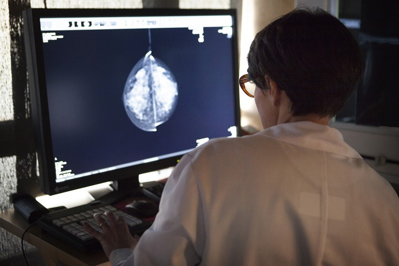 Radiology center, France, radiologist looks at the results of mammograms.