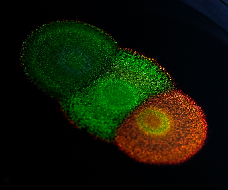 Differently coloured colonies of bacteria