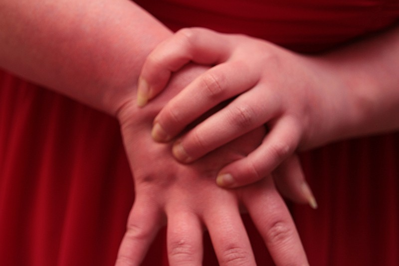 Close-up photograph of hands showing symptoms of erythromelalgia: they are red and inflamed.