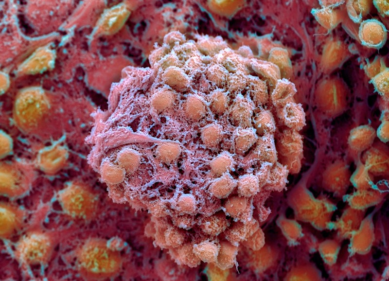 Coloured scanning electron micrograph of human embryonic stem cells