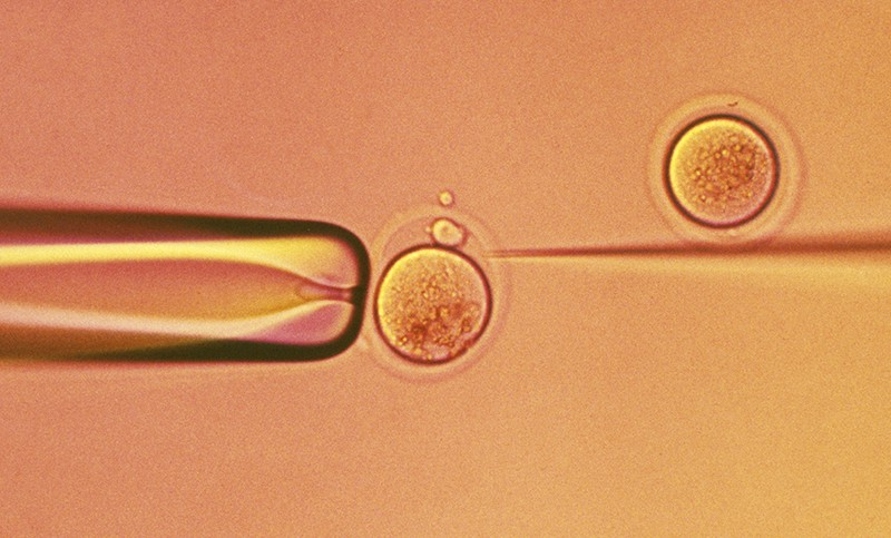 An orange tinted micrograph image of an egg being fertilised in vitro.