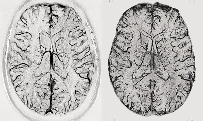 MRI scans of the brain