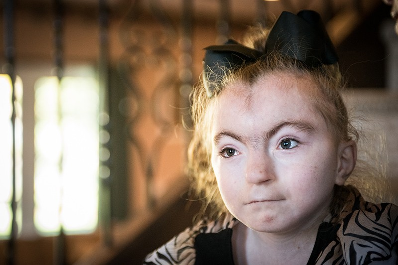 An 11-year-old girl who has Cornelia de Lange