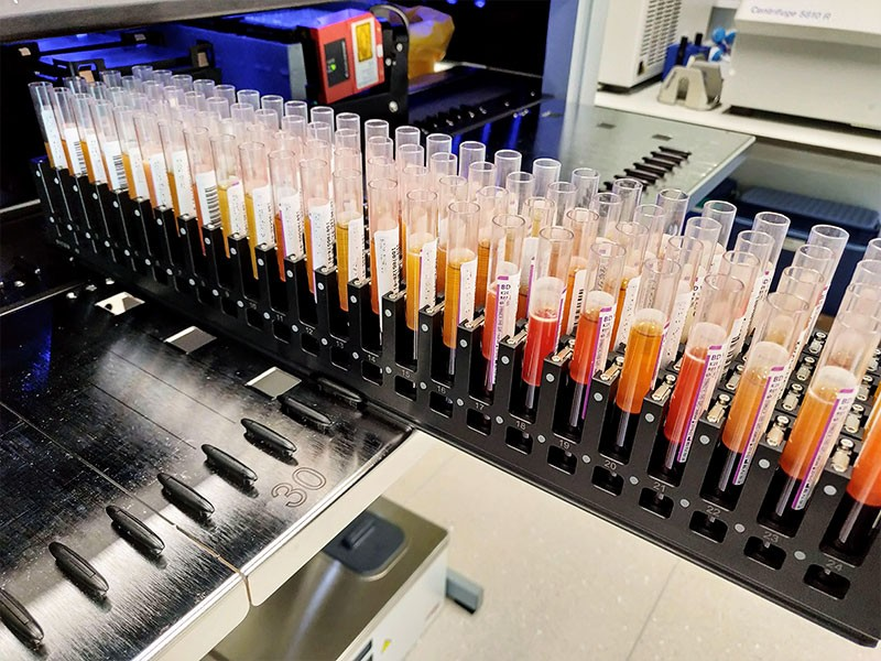 Blood samples in testubes at the Estonian biobank in Tartu