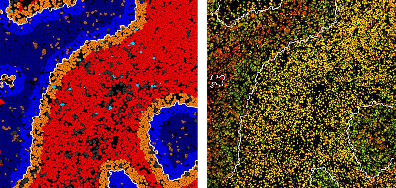Two views of tumour and surrounding cell regions with tumour-immune border lines