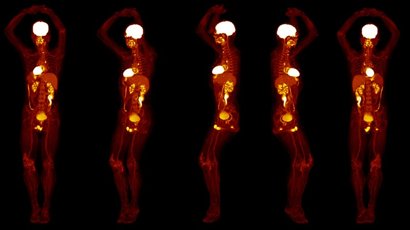 Views from an FDG-PET scan performed on a healthy subject using the EXPLORER Total Body PET scanner