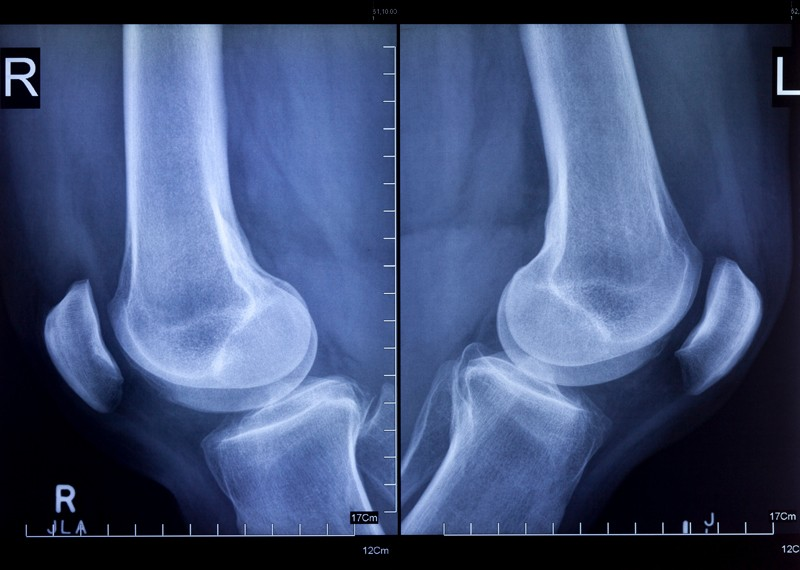 X-rays of left and right knees, lateral view.