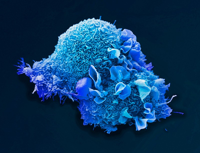 Lung cancer cell, coloured scanning electron micrograph